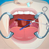 OPERATE NOW TONSIL SURGERY